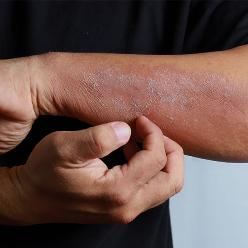 Dermatologie Online